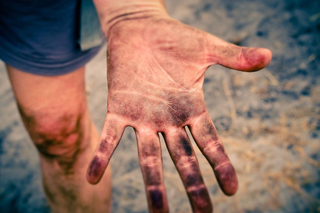 Smutsig hand.